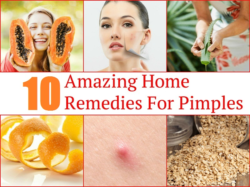 How To Get Rid Of Acne Home Remedies