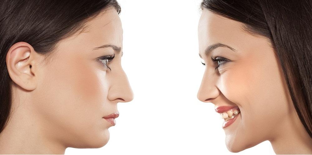 Correct Nasal Deformities