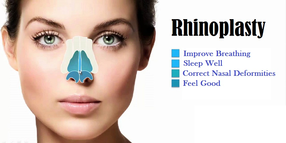 Top 4 Health Benefits of Rhinoplasty