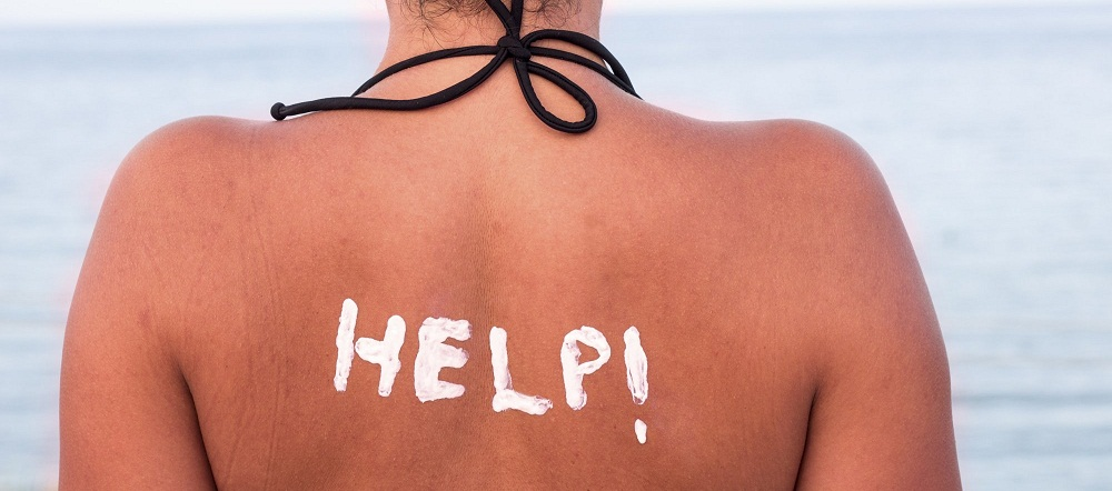 Treating sunburn