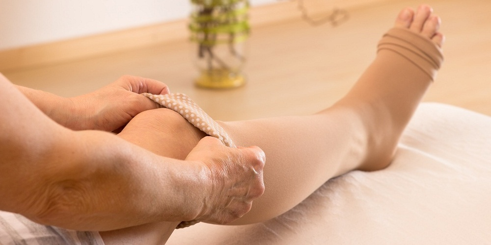 Compression Stockings for Spider Veins and Varicose Veins