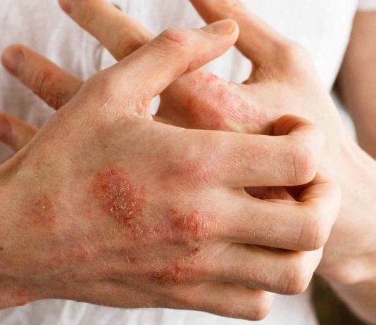 Filaggrin deficiency - Atopic eczema