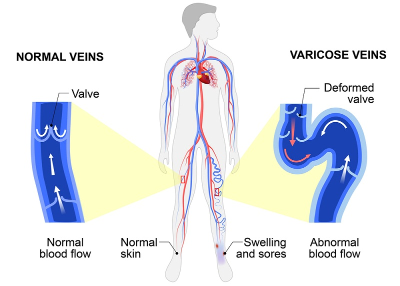 Why varicose veins occur